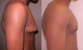 exercises for gynecomastia